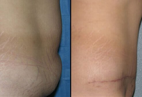 Photos of before and after a tummy tuck.