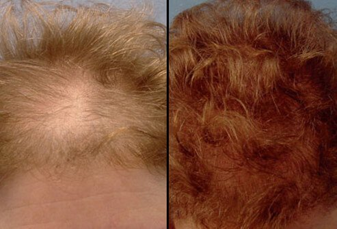 Photos of before and after a hair transplant.