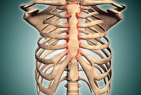 Costochondritis is an inflammation of the area where the ribs join the cartilage that is attached to the sternum (breast bone).