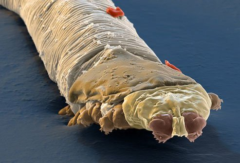 The number of face mites you carry increases with age.