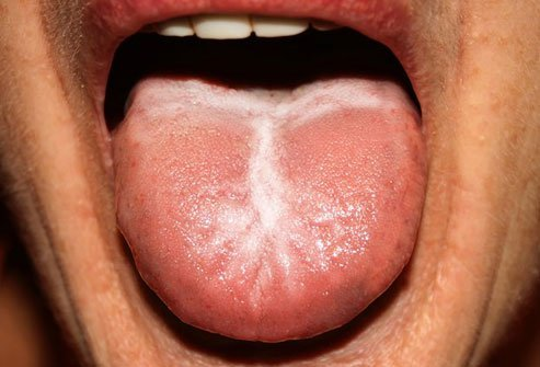 An overgrowth of candida in your mouth is called thrush.