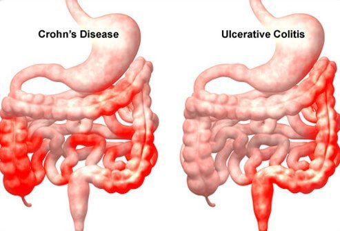 Illustration showing Crohn's Disease and Ulcerative Colitis comparison.
