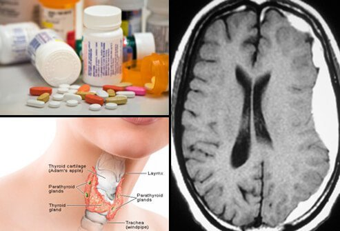 An assortment of medications (top left), MRI of subacute subdural hematoma (right) and illustration of the thyroid (bottom left).