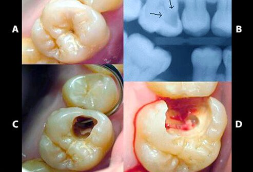 (A) A small spot of decay visible on the surface of a tooth. (B) The radiograph reveals an extensive region of demineralization within the dentin (arrows). (C) A hole is discovered on the side of the tooth at the beginning of decay removal. (D) All decay removed.