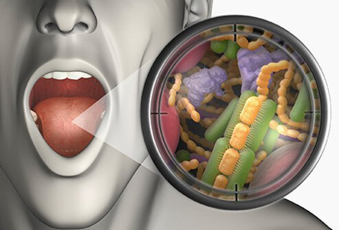 Illustration of open mouth with a magnified zoom out of bacteria that lead to bad breath (halitosis).