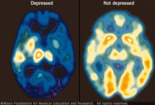 "Shown here is a PET scan revealing ""hot spots"" of increased activity in a non-depressed brain."