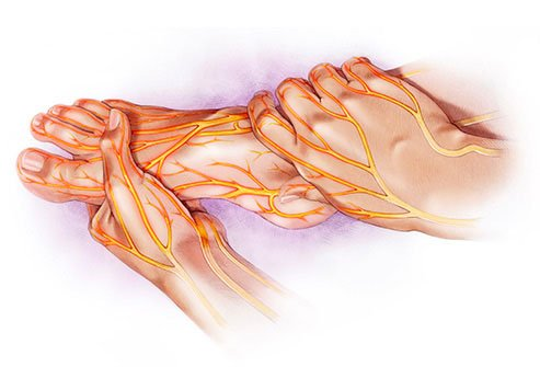 Diabetes may affect peripheral nerves that help you feel pain and temperature.