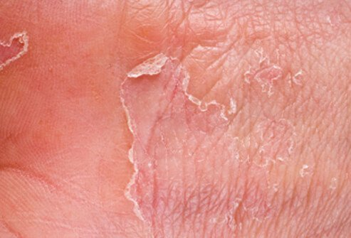Dry skin can crack, allowing germs to enter.