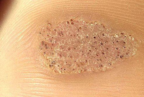 Plantar warts look like calluses on the ball of the foot or on the heel and are caused by a virus that infects the outer layer of skin.