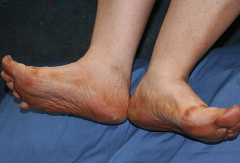 A foot with ulcers due to the loss of adequate blood circulation to the feet.