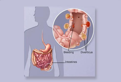 Diagram showing a ruptured diverticulum that has become infected, causing the condition referred to as diverticulitis.