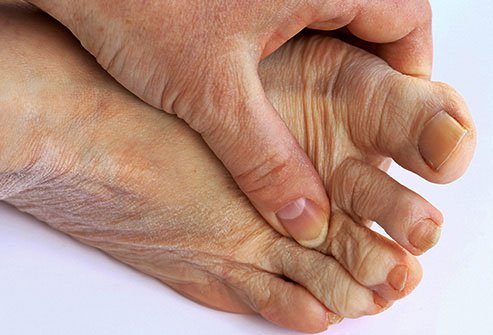 You might think of the Middle Ages when you think of this type of painful arthritis.