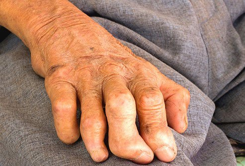 Leprosy is a disease reported in ancient times in places like Egypt, China, and India.