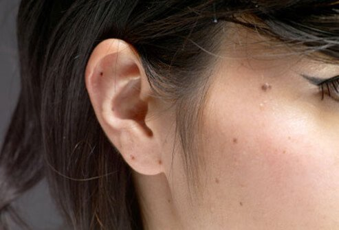 Photo of girl with moles.