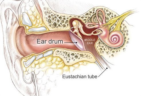 Middle ear infections are caused by bacteria and viruses.