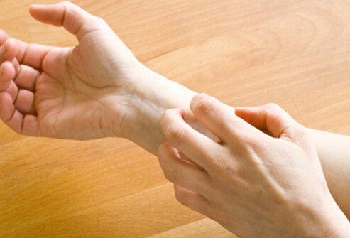 Intense itching is often the first symptom most people experience with eczema.