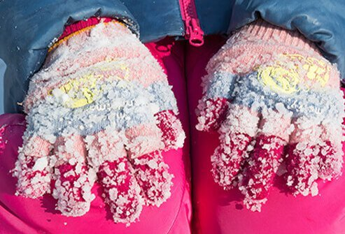 Snow frozen to a young girl's pink gloves.