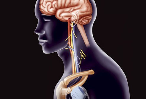 VNS or vagus nerve stimulation is a treatment technique designed to prevent seizures by sending regular, mild pulses of electricity to the brain by stimulating the vagus nerve.