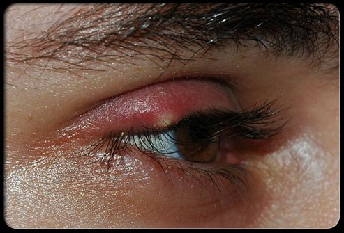 A sty (also spelled stye) is an infection of the oil gland at the base of an eyelash.
