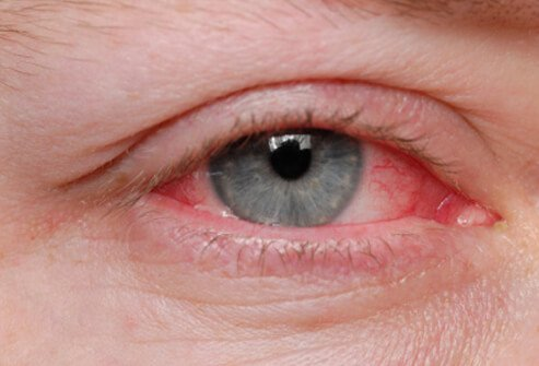 Severe eye allergies may cause damage to the eye that may threaten eyesight.