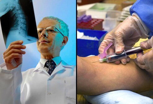 A doctor performing tests to diagnose fibromyalgia.