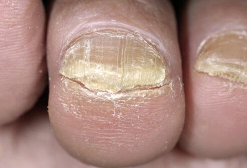 Onychomycosis is a fungal infection of the nails that causes discoloration and thickening of the toenails may cause yellow toenails.