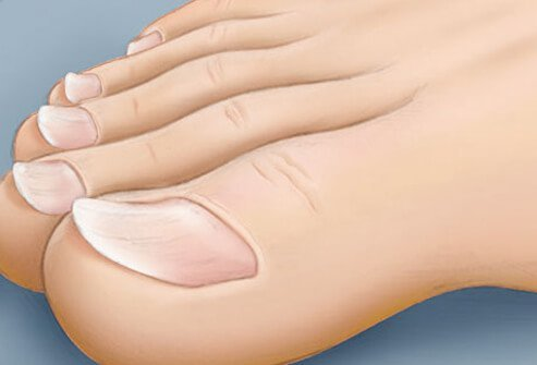 An illustration of spoon-shaped toenails