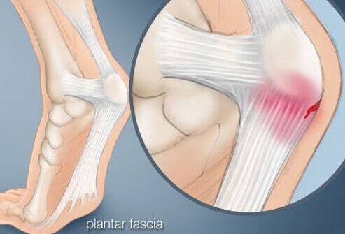 Plantar fasciitis is the most common cause of heel pain.