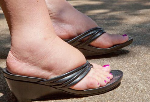 Swelling of the feet may be temporary from prolonged standing or sitting in one position.