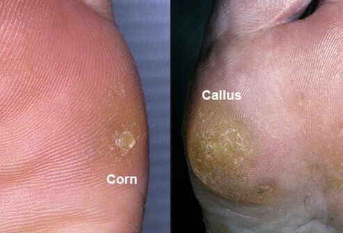 Friction and pressure cause corns and calluses.
