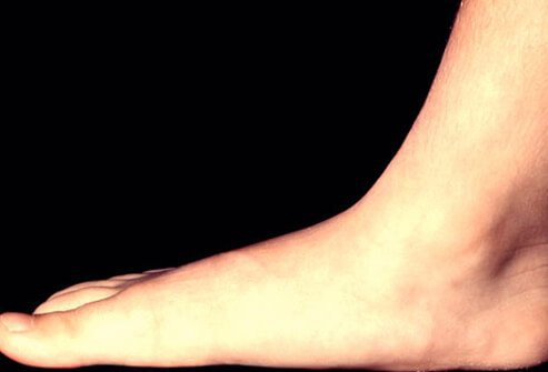Flatfoot is a condition characterized by the sole of the foot coming into complete or near-complete contact with the ground when weight bearing.