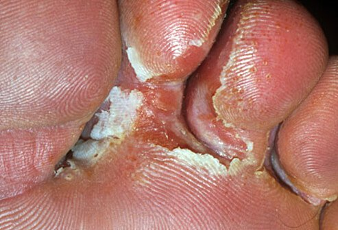 Photo of athlete's foot between the toes.