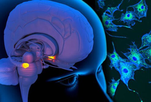 Photo of brain and nerve cells.