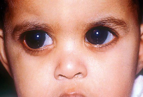 Some children are born with glaucoma.
