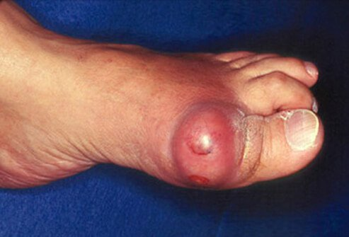 Gout attack symptoms causes treatment and diet an elderly man suffers from acute gouty arthritis on his big toe solutioingenieria Image collections