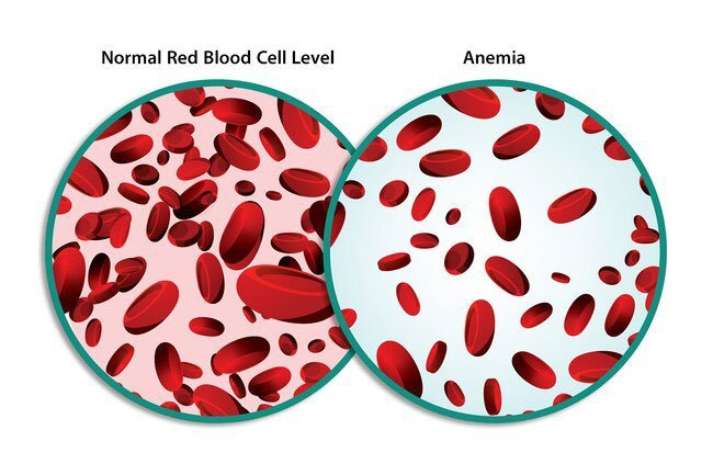 In many blood disorders, there aren't enough of certain blood cells.