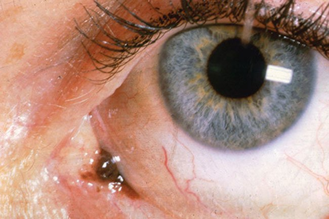 Cancer may form in the conjunctiva that lines the outside of the eyeball.