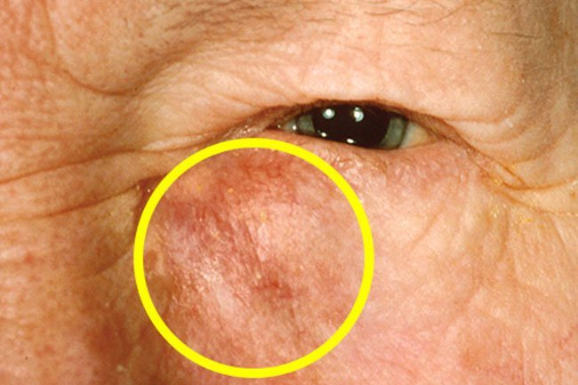 Cancer that starts in the tear ducts is called lacrimal gland cancer.