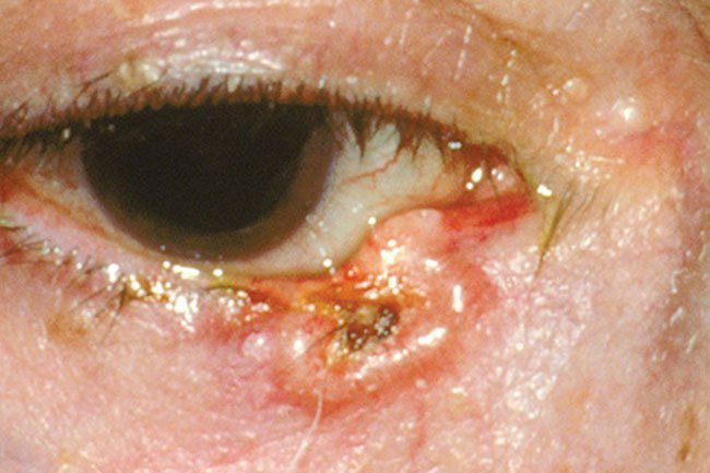 Eyelid cancer may form due to excess sun exposure.