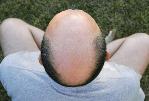 Androgenetic alopecia, also sometimes referred to as