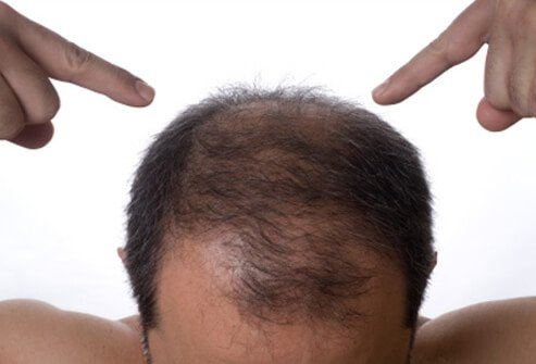 Some men may start to notice thinning hair as early as their 20s, and by age 50, 50% of men see some hair loss.