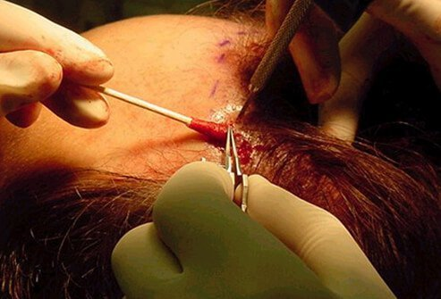 Permanent hair loss can be treated with surgery. There are three common types of hair replacement surgery.