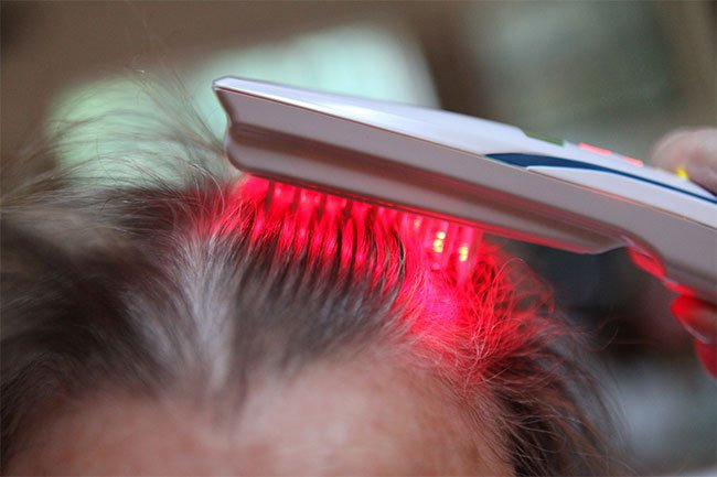 Low-dose laser therapy is being used under several names as a treatment for genetic baldness.