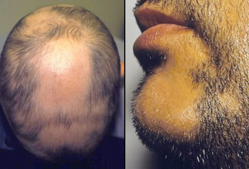 Picture of Alopecia Areata Head and Beard