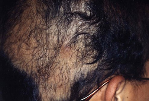 A medical disorder that causes people to pull out their own hair is called trichotillomania.