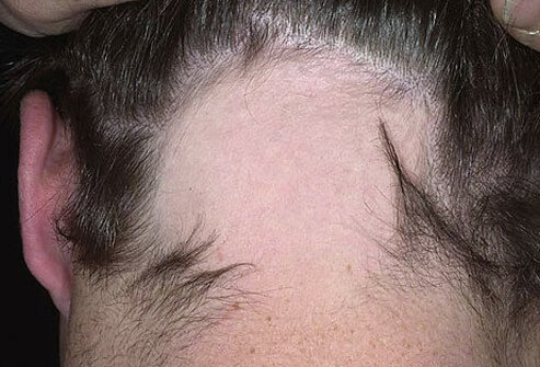 Alopecia Areata Signs Treatment Symptoms Causes In Children