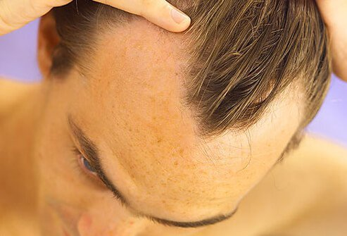 A man with hair loss shows his receding hairline.