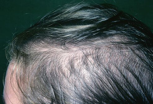A photo of a woman with hair loss