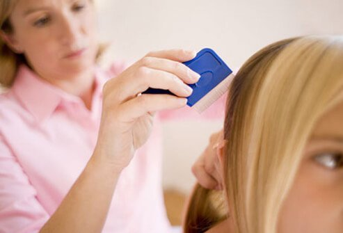 Photo of lice comb in hair.