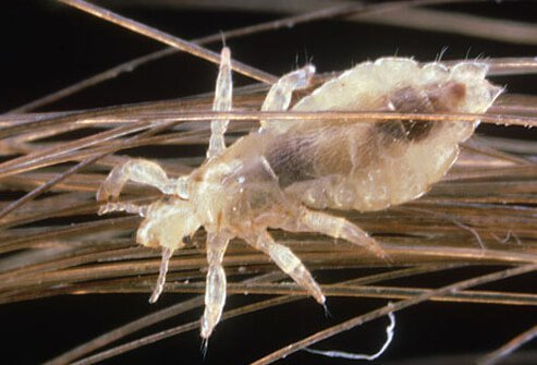 Photo of louse on human hair.